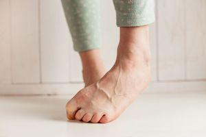 Гъбички по краката 1